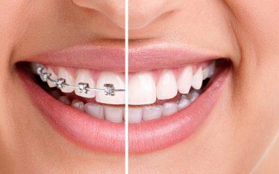 Curso de Especialização em Ortodontia.Saiba Mais.